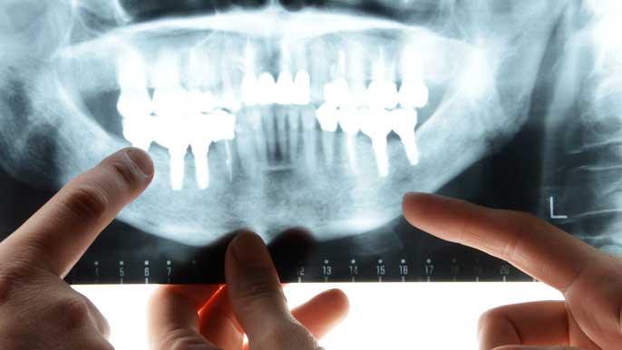 インプラント手術を行う患者のレントゲンを確認してる歯科医師たち