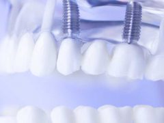 インプラントが入っている歯の模型
