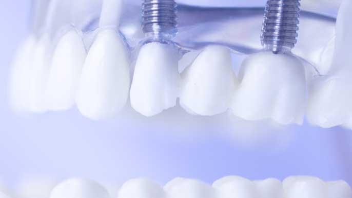 インプラントの入った歯の模型